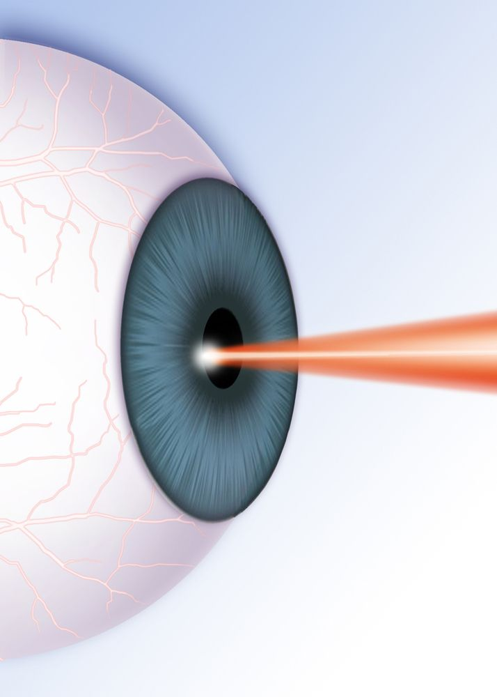 laser eye therapy
