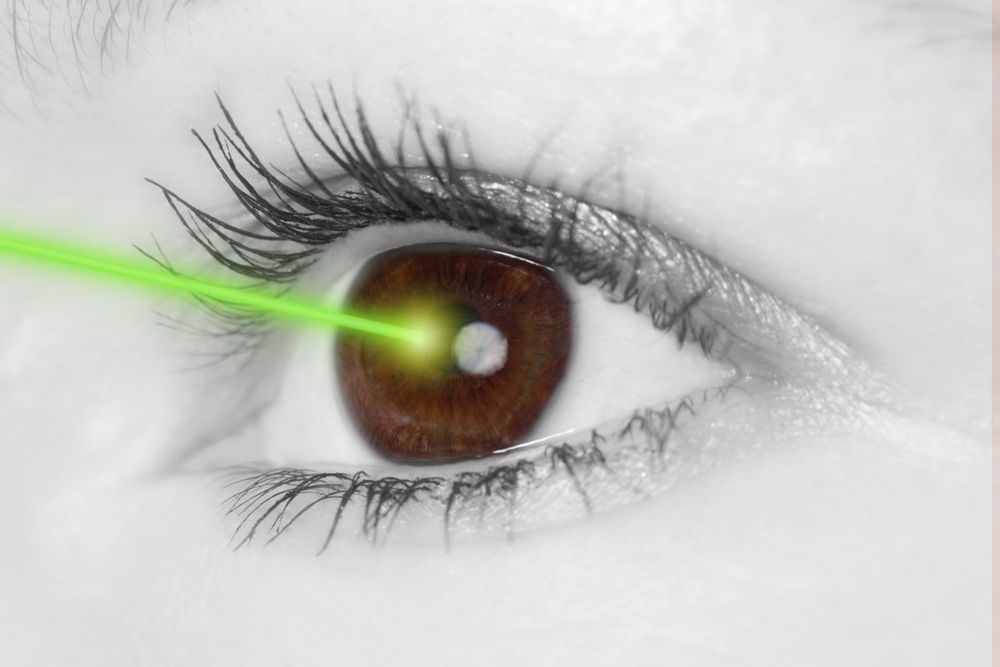 eye laser therapy