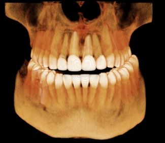 3d scan dental x-rays