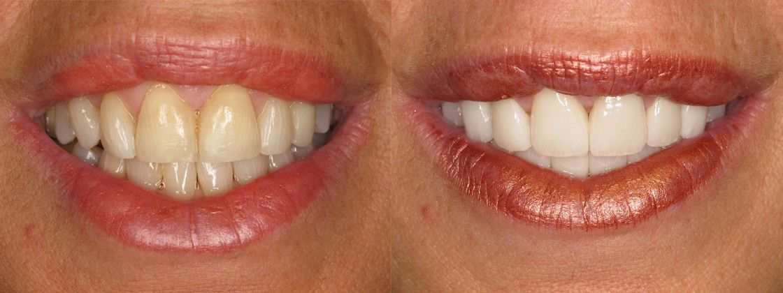 stained yellow teeth solution