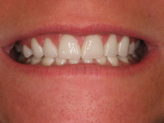 the picture of girl's teeth for after in porcelain veneers