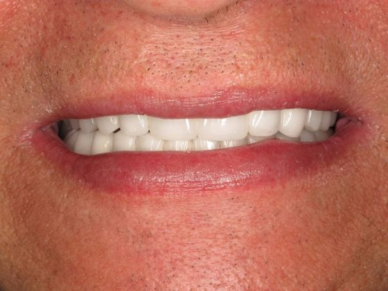 Single Tooth Replacement Dentist In Palm Beach Gardens Fl