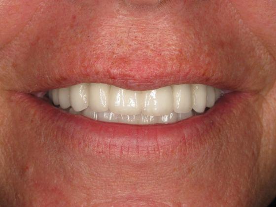 white implants