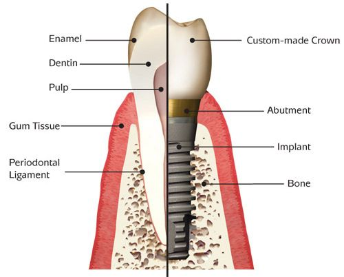 Dental Implants Faq Dentist In Palm Beach Gardens Fl