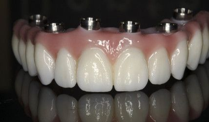 Prettau Zirconia Bridge with dental implant connectors
