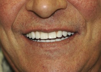 View of lower face of man smiling to show beautiful teeth