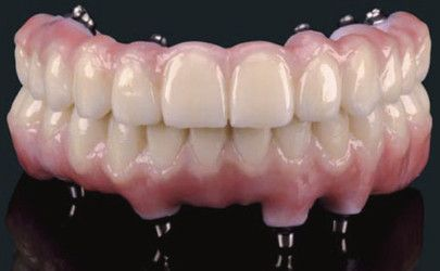 Prettau 174 Zirconia Bridge By Palm Beach Gardens Dentist