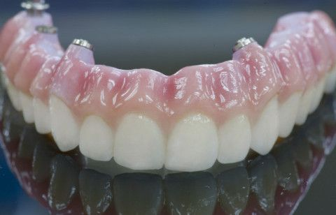 dentures for missing teeth