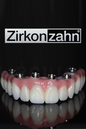 zirkonzahn dental bridges