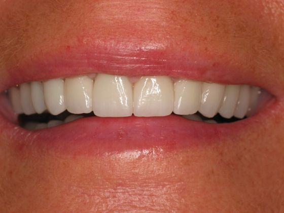 the picture of girl's teeth for after in COMPLETE DENTAL RESTORATION