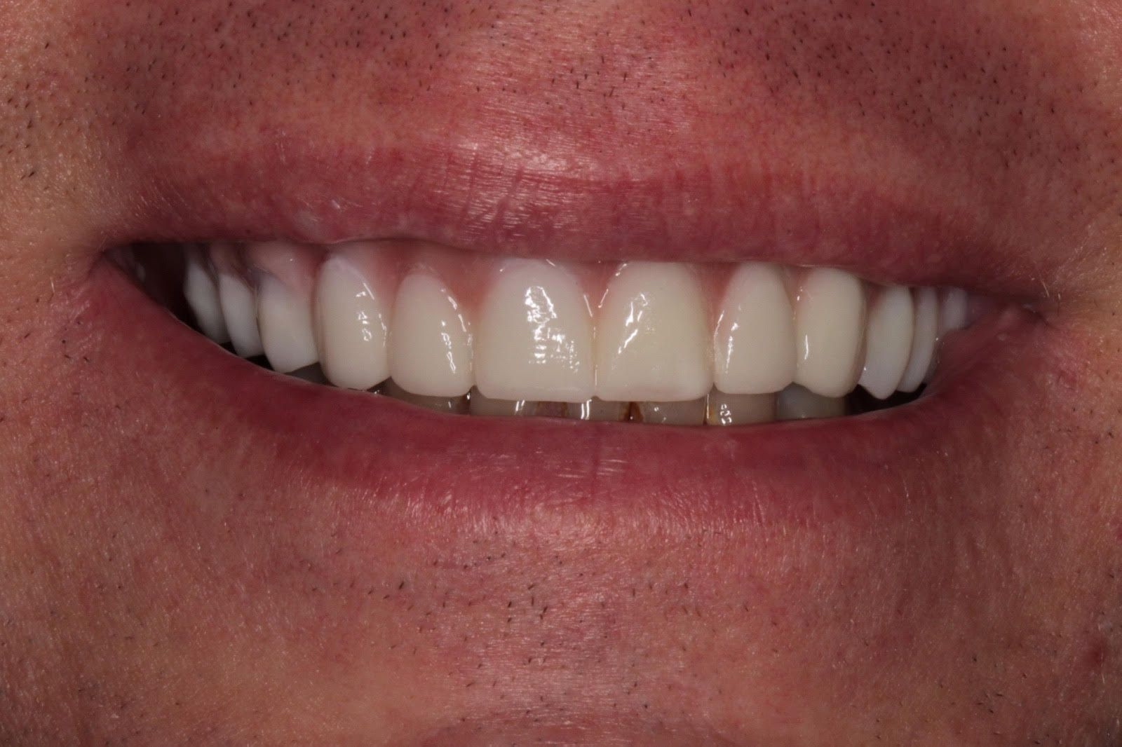 the picture of man's teeth for after in ZIRCONIA IMPLANT BRIDGE