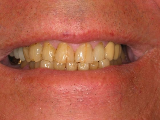 the picture of man's teeth for before in COMPLETE DENTAL RESTORATION