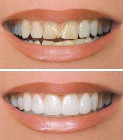 How To Restore Tooth Enamel Palm Beach Gardens Fl
