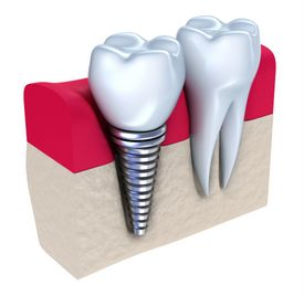 West Palm Beach Tooth Replacement
