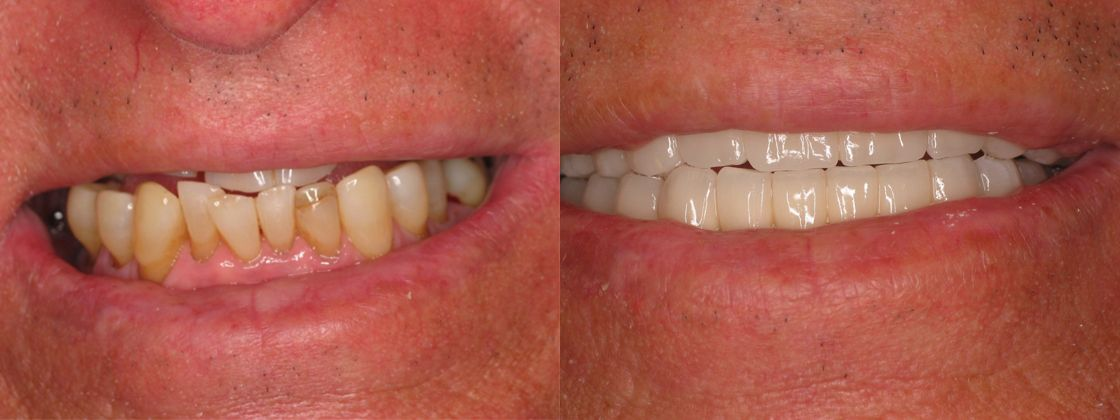 tooth loss jaw problem