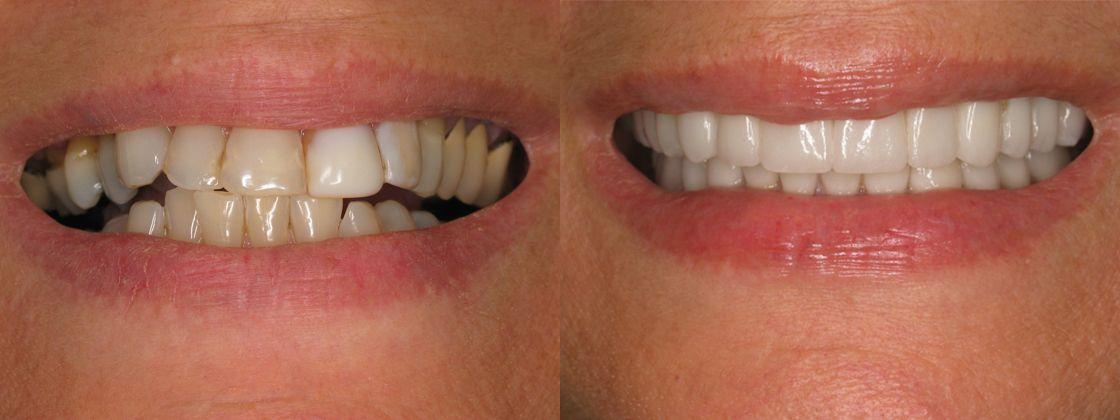 dentures replacement