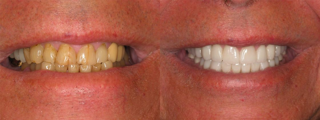 cracked teeth solution