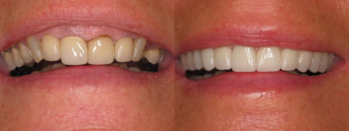 lip and smile lift procedure