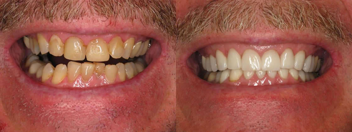 teeth replacement
