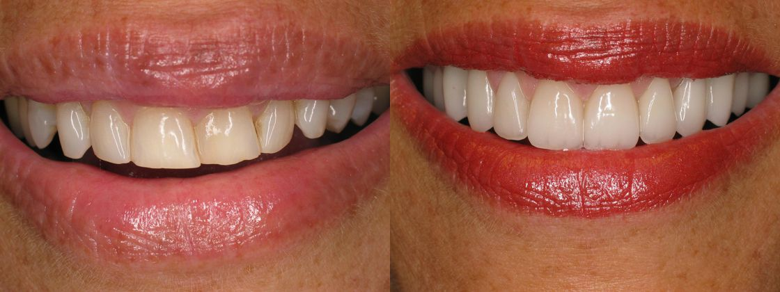 dark crooked teeth solution