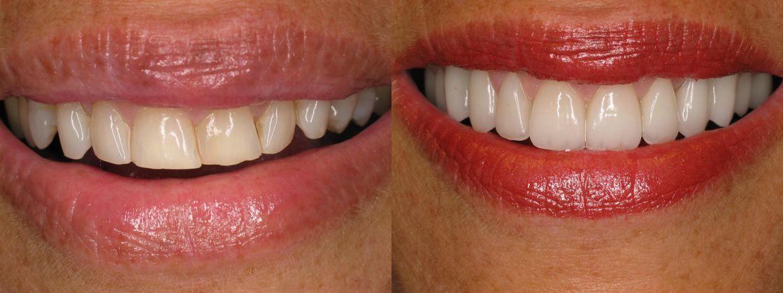 dark crooked teeth solution