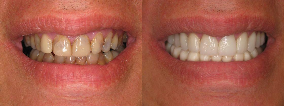 dental veneers result