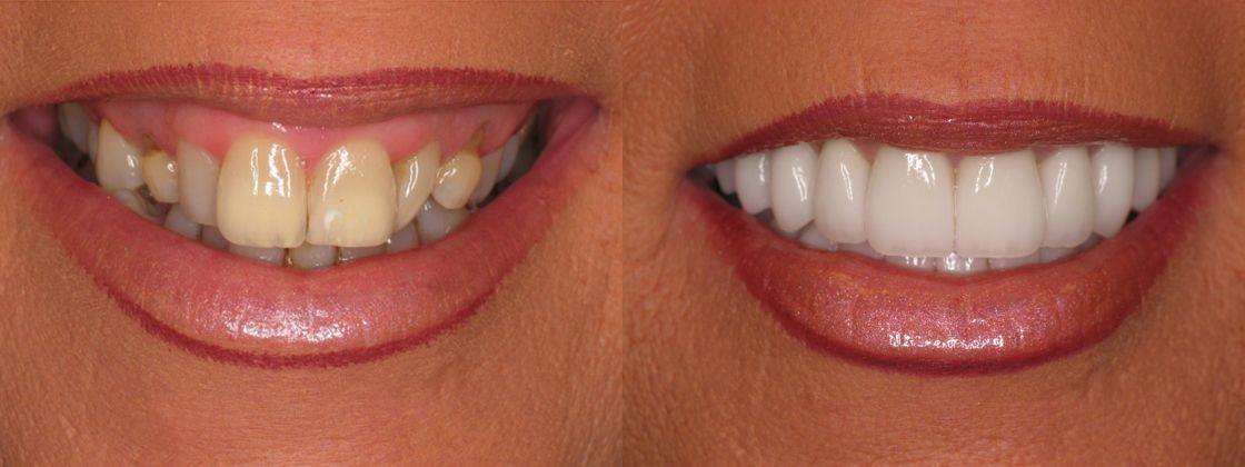 gummy smile solution