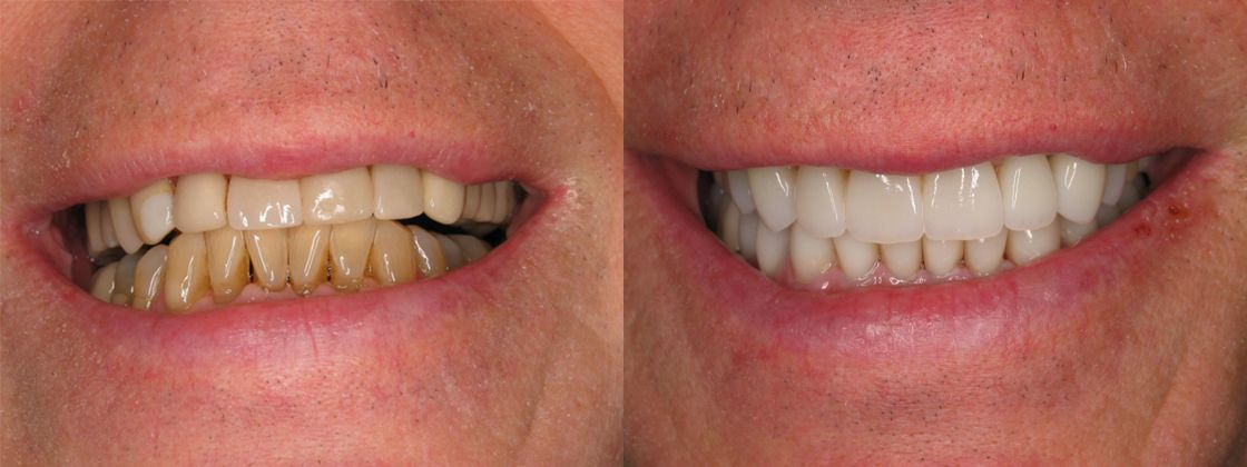 dental veneers replacement