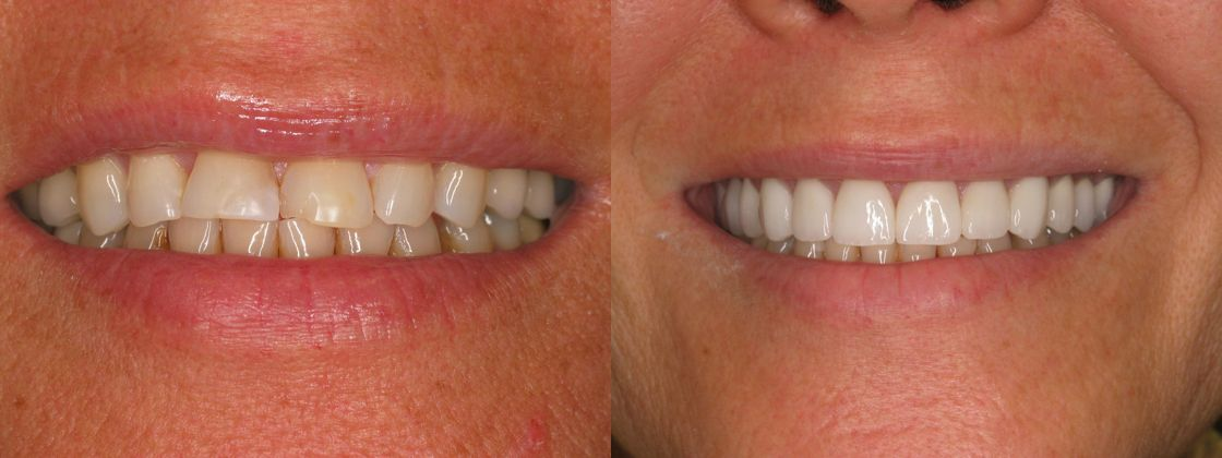 dark yellow teeth solution