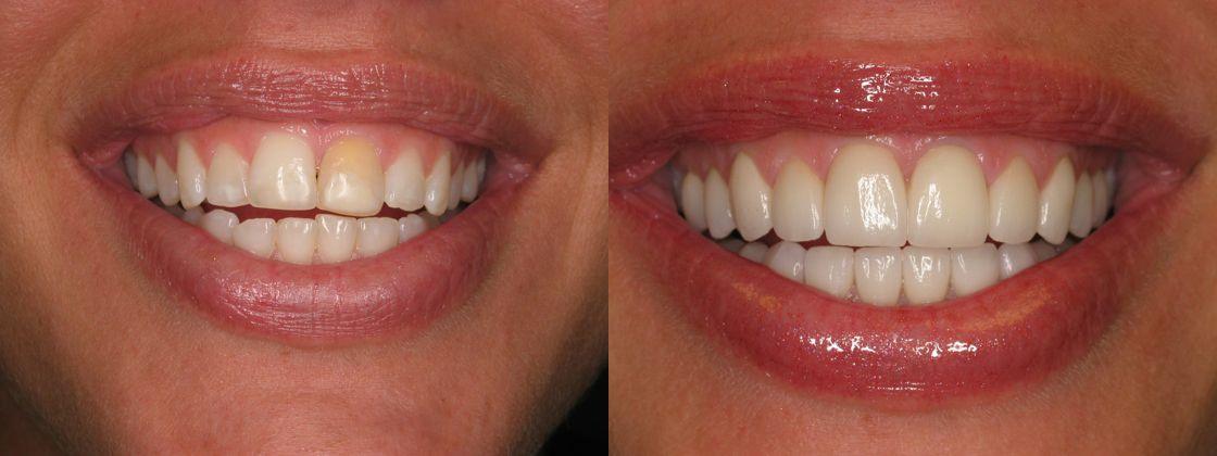 teeth gap solution