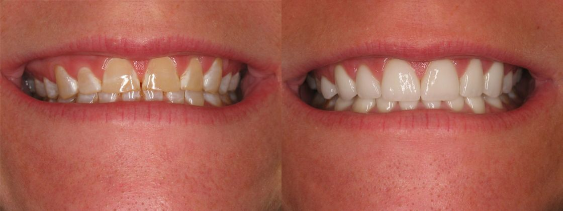 stained teeth solution
