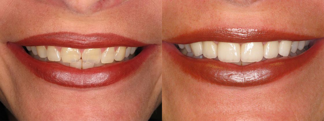 chipped teeth solution