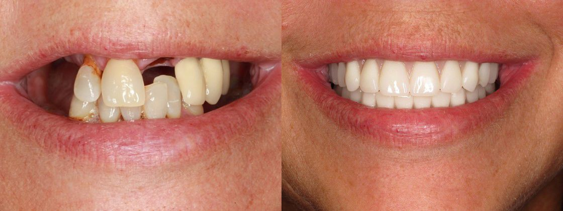 chipped cracked teeth solution