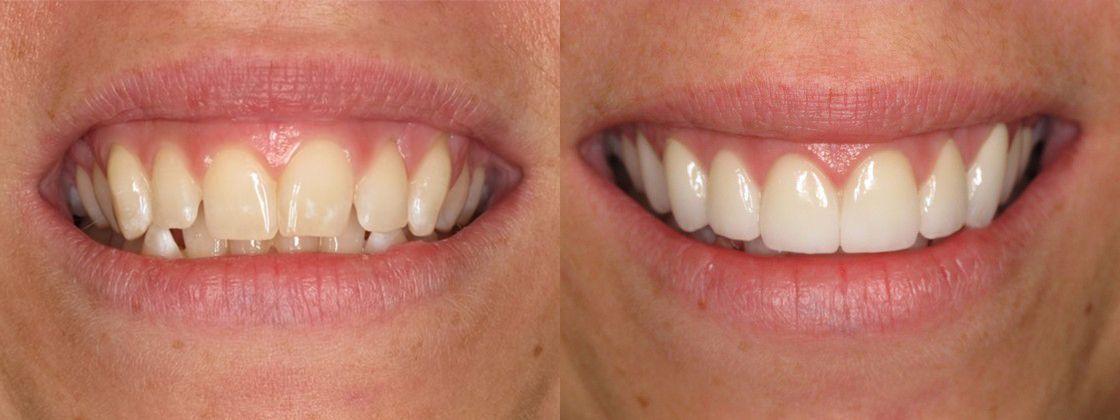 crowded yellow teeth solution
