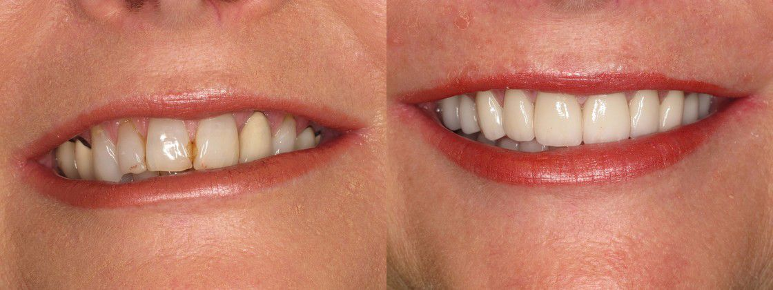 teeth overbite solution fix