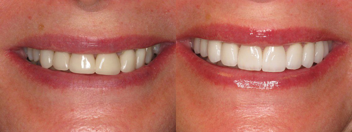 old dental crowns replaced