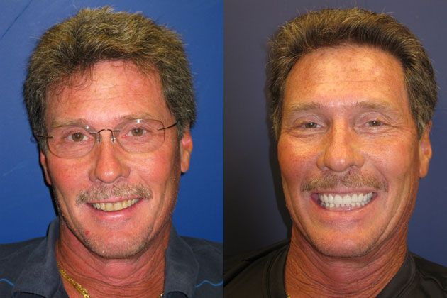 yellow misaligned teeth