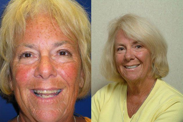 get rid of metal dental fillings