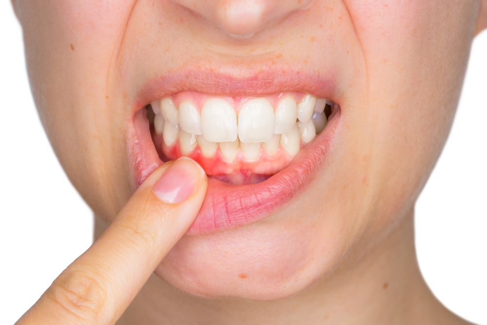 Stages Of Gum Disease Diagnosis Gum Treatment Palm Beach Gardens