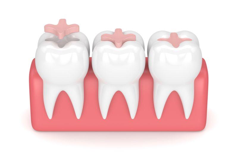 dental sealants cosmetic dentist palm beach
