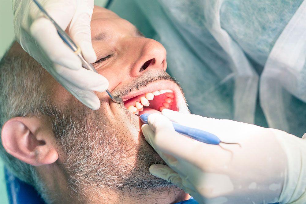 Dental Crowns FAQs
