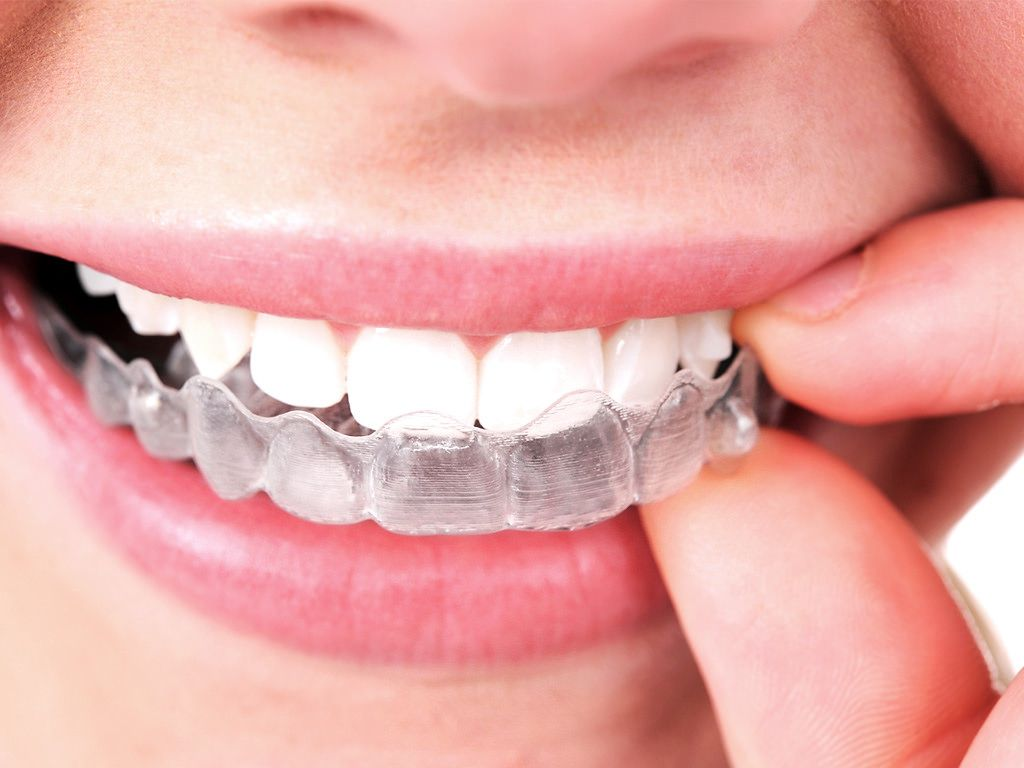 Cost of Invisalign