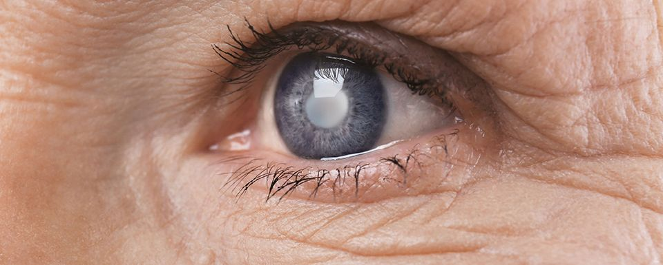 Are You At Risk for Cataracts?