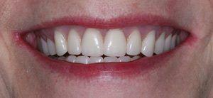 after dental procedure