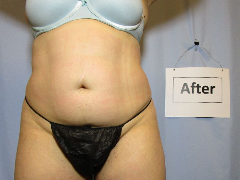 after weight loss
