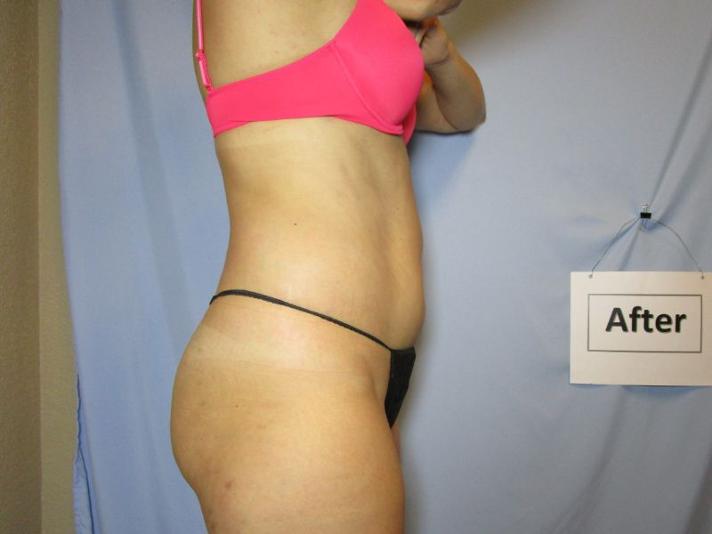 Fat Loss After