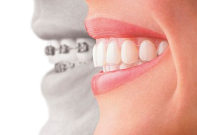 wired braces versus invisalign