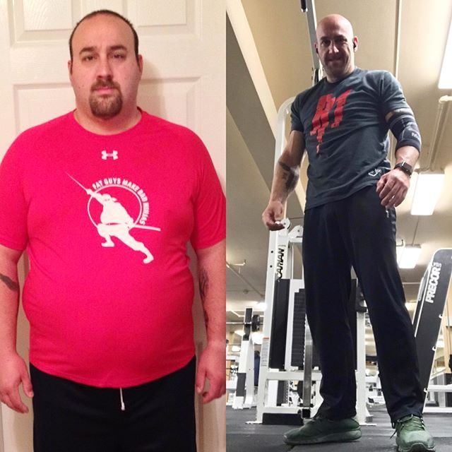 Weight Loss Stories Bariatric Surgery In Long Island