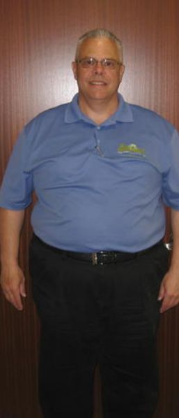 Before Bariatric Surgery Long Island