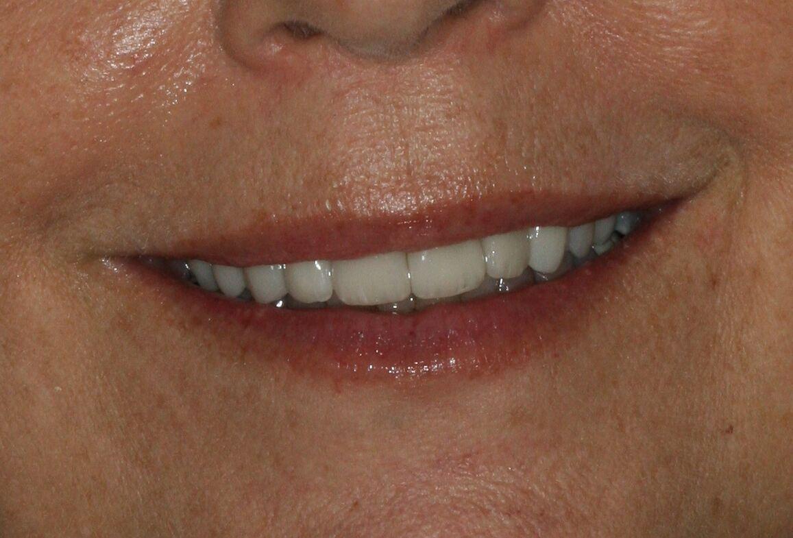 teeth whitening from veneers